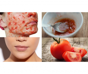 DIY TOMATO FACIAL FOR GLOWING SKIN