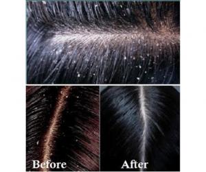 DIY HAIR MASK FOR DANDRUFF GROWTH