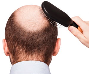 DIY HAIR TONIC FOR BALD PATCHES