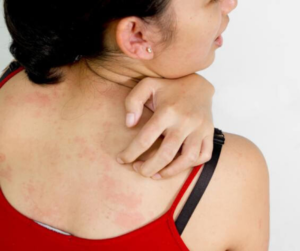 DIY REMEDY FOR BODY RASHES CAUSED BY HARSH FABRICS