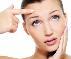 REMOVE FINE LINES ON SKIN IN JUST A MONTH