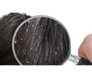 DIY HAIR OIL TO GET RID OF DANDRUFF